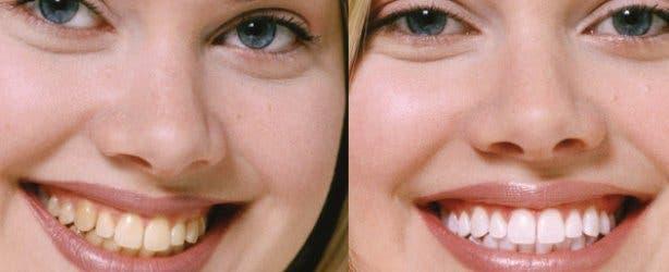 Hout Bay Dental Studio Teeth Whitening Effects