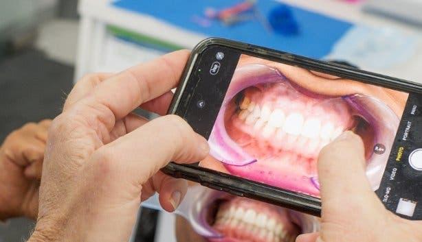 Zoom Whitening_teeth whitening_taking pic